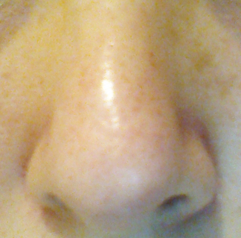 Results after two months' use of COSRX BHA Blackhead Power Liquid
