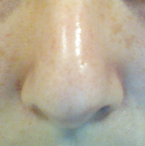 Nose pores cleared with BHA use