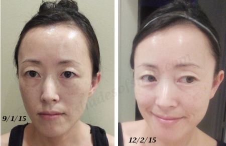 3 month before and after on Curology prescription tretinoin