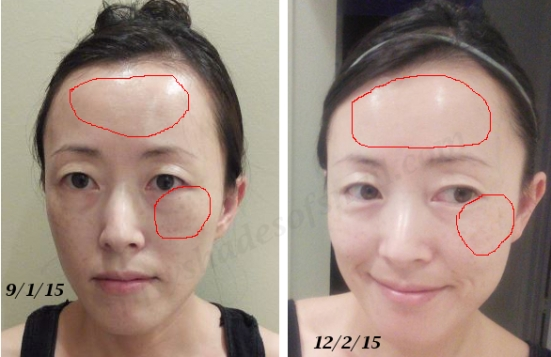Curology tretinoin and azelaic acid B&A
