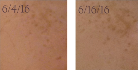 Before and after with Naruko Platinum Bright Essence Repairing Complex