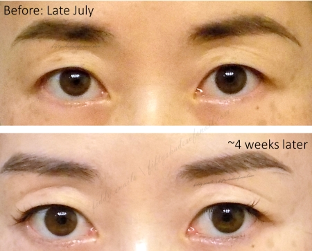 Naruko miracle essence skin whitening before and after